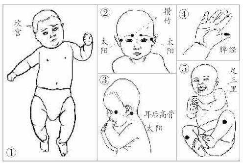 四大手法防治宝宝感冒